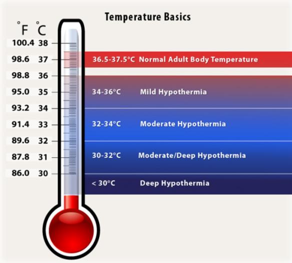 Temperature Basics